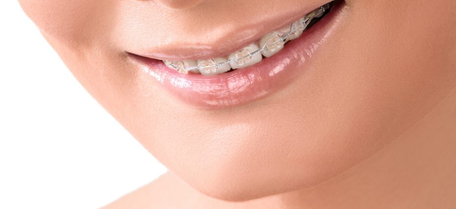 Should You Consider Invisible Braces Over Metal Ones? Find Here!