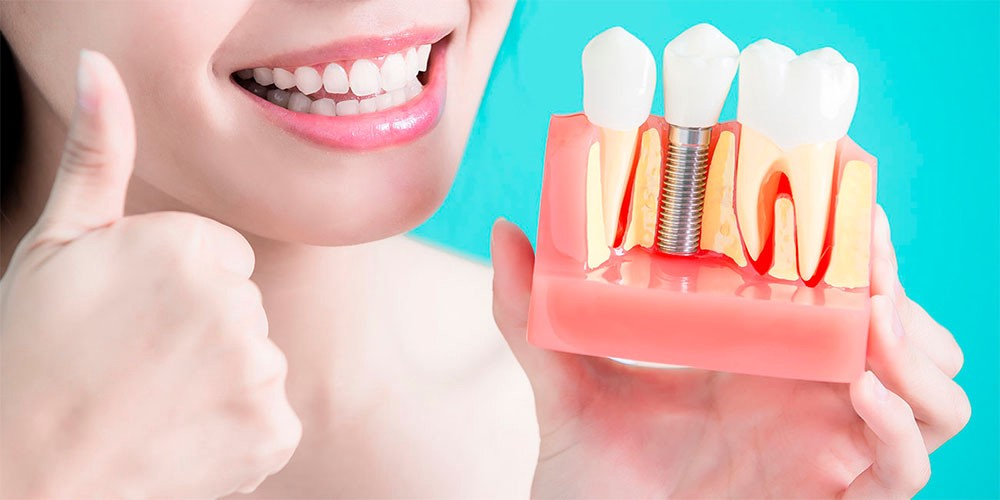 Why Dental Implants Are the Perfect Solution for Missing Teeth