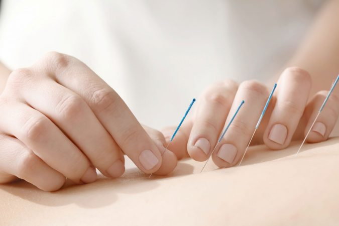 Considering Acupuncture? Make Sure To Read this First