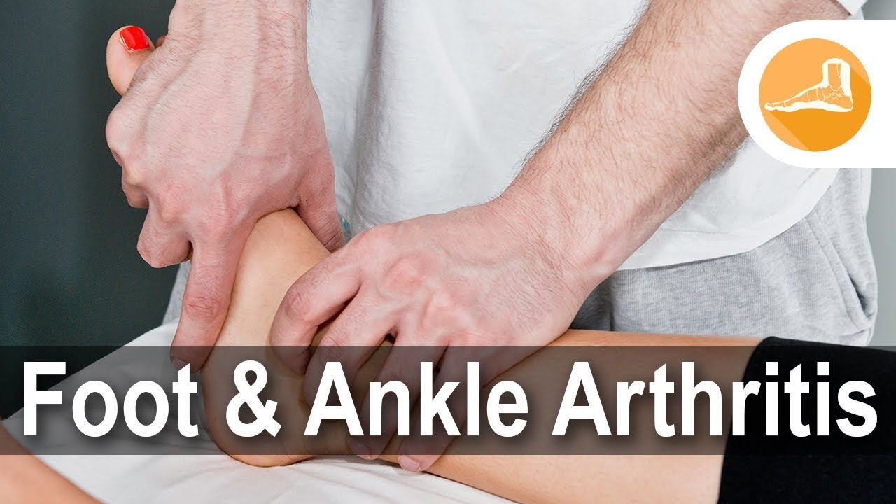 Here is What You Should Do If You Have Foot and Ankle Arthritis