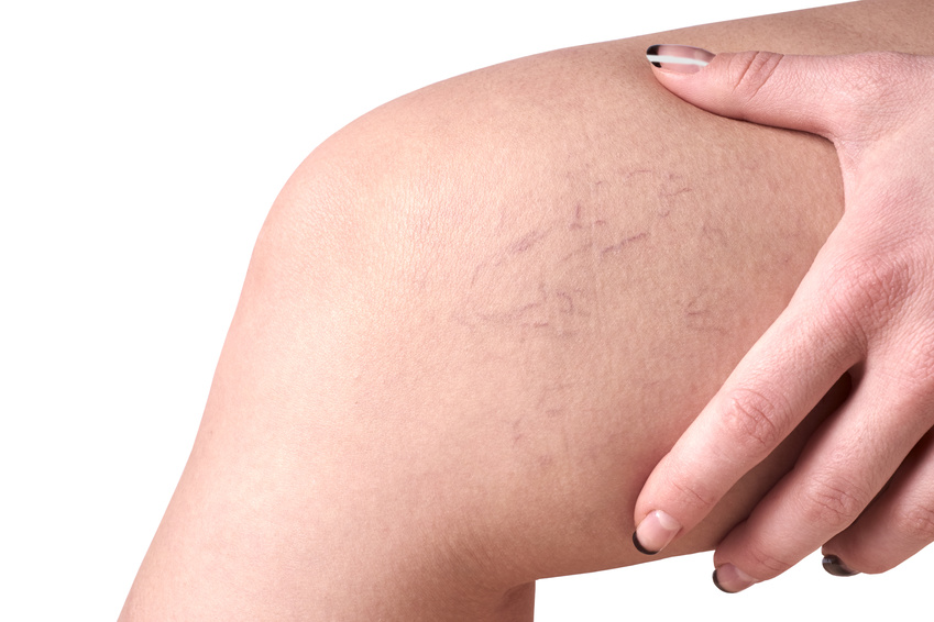 Which is better for Spider Treatment: Laser Vein Treatment or Sclerotherapy?