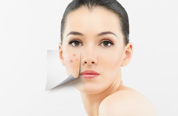 Making the most of acne treatment plan