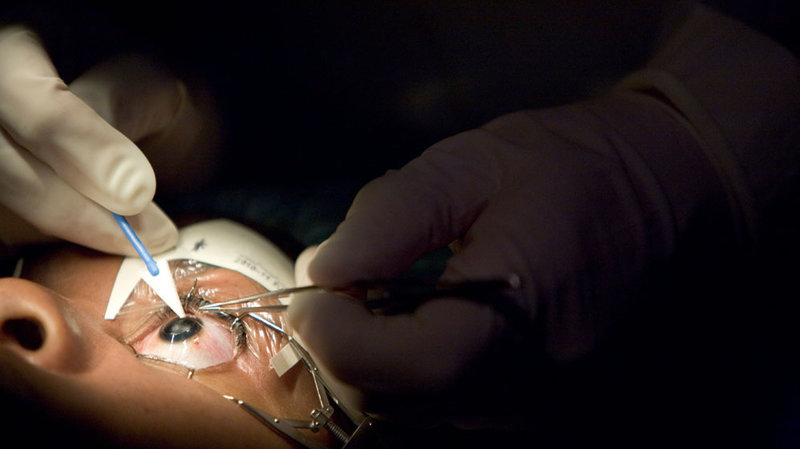 A Couple of Important Details and knowledge About Lasik Surgery