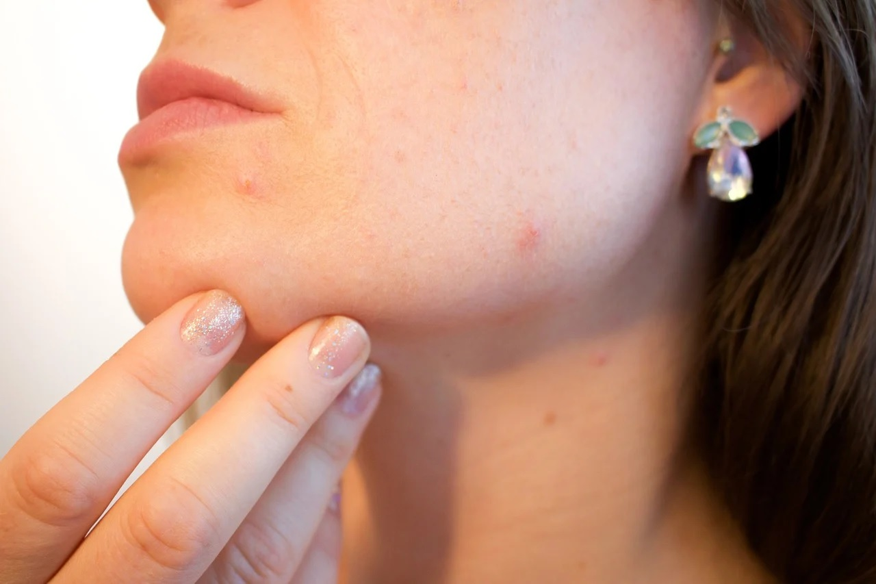 A Guide to Living With Acne