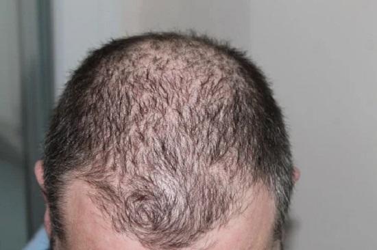 WAYS TO COMBAT HAIR LOSS